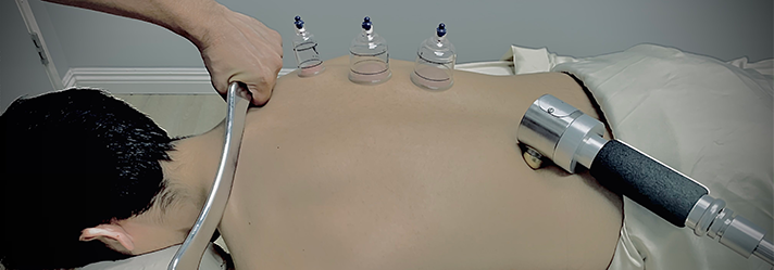 Chiropractic Downey CA Cupping Therapy